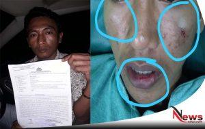 Dua Oknum Polisi Diduga Aniaya Pemuda 16 Tahun Di Sumenep